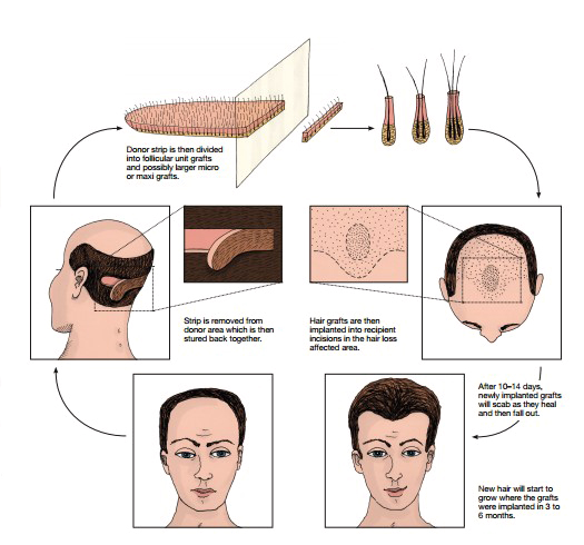 Otberg Medical Zeichnung Streifenentnahme